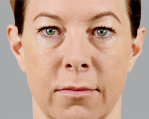 after treatment of juvederm