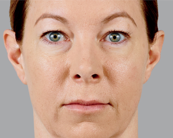 before treatment of juvederm treatment
